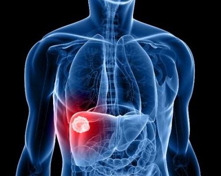 Viêm gan B - Nguyên nhân, triệu chứng và cách điều trị 1