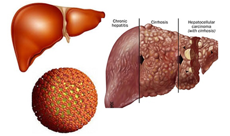 3. Biến chứng không lường của bệnh viêm gan B 1