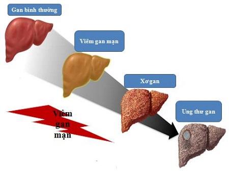 Lý do 1: Bệnh xơ gan diễn biến rất âm thầm 1